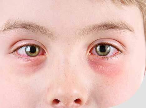 Inflammation of the Conjunctiva