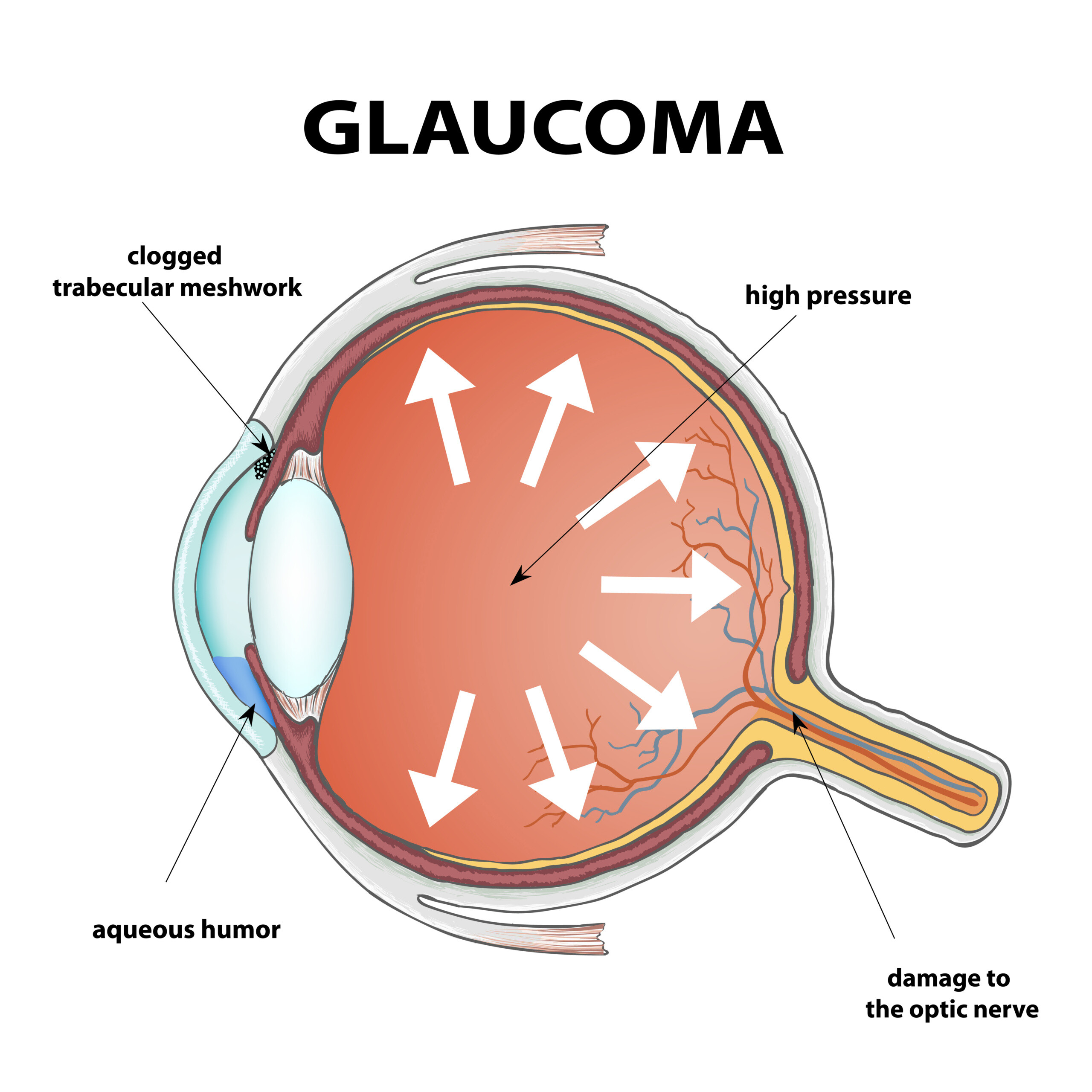 7 Facts You Should Know About Glaucoma